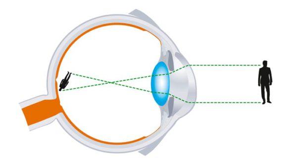Astigmatisme - oogaandoening
